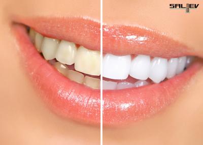Петната по зъбите – как да се отървем от тях?
