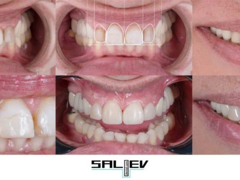Пациент на д-р Никос Стамулис – специалист в естетическата област от клиника Saliev Dental Care