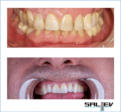 Нова усмивка от Saliev Dental Care
