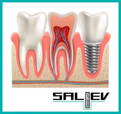 ❗️Няколко важни неща за зъбните импланти