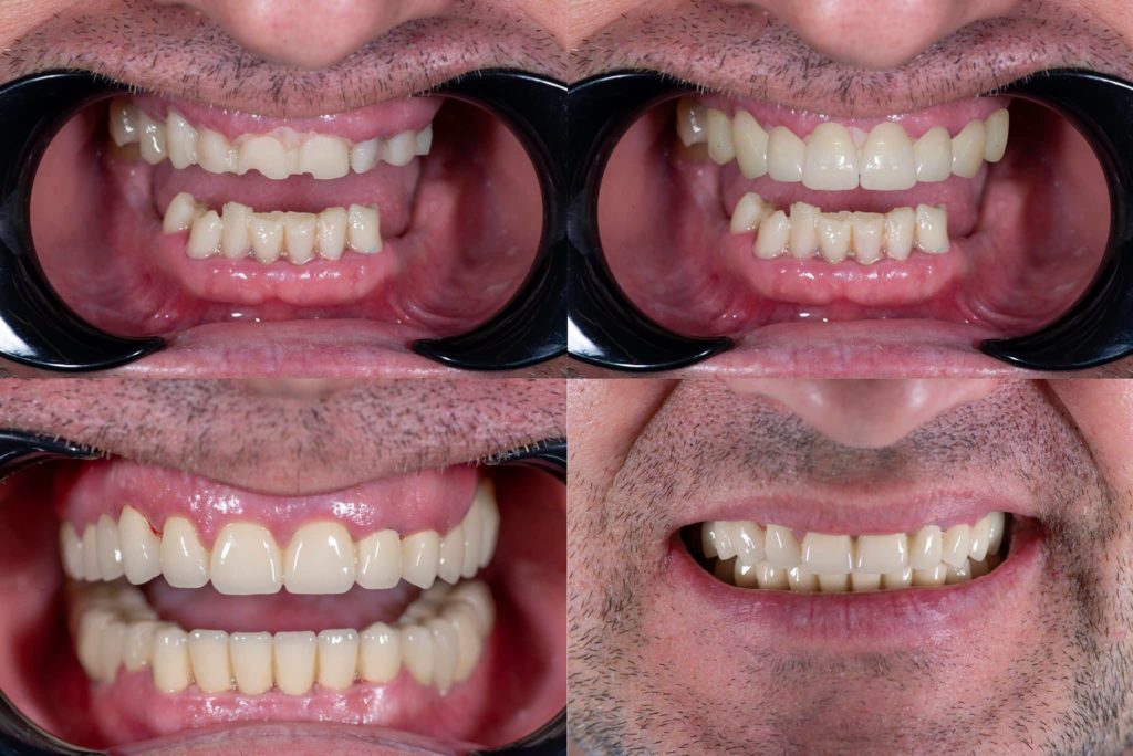 Нова и блестяща усмивка със Saliev Dental Care