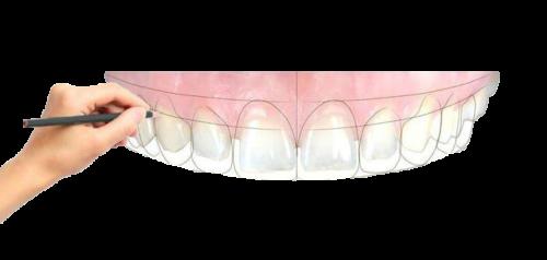 Digital-Smile-Design- салиев дентал кеър