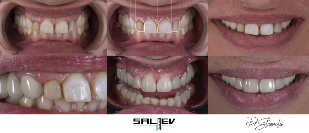 5 | Дентална Клиника Saliev Dental Care