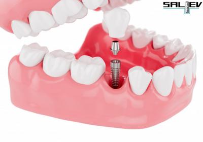 Най-търсената процедура за постигане на идеална усмивка – Базални зъбни импланти