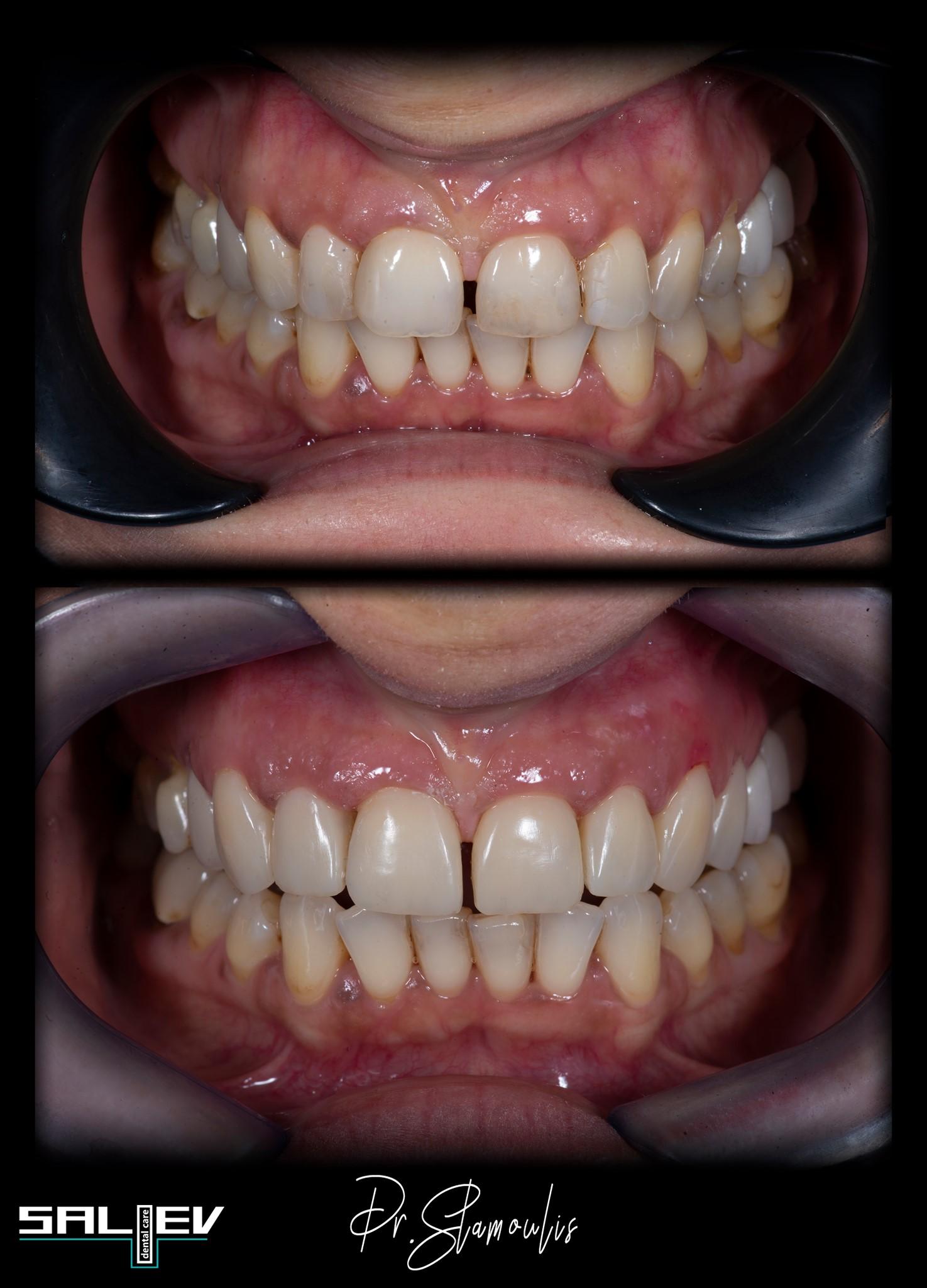 Импланти, Салиев Дентал Кеър, Бондинг, Dental clinic Sofia