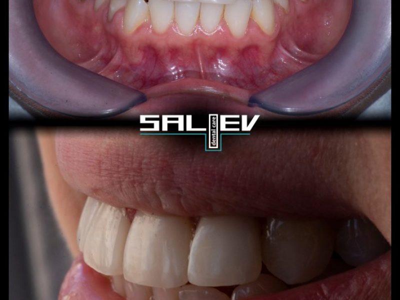 Композитни фасети дентална клиника Салиев дентал кеър бондинг