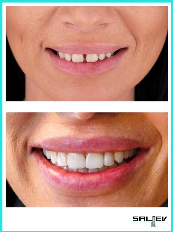 Зъбни импланти с Др Ерхан Салиев