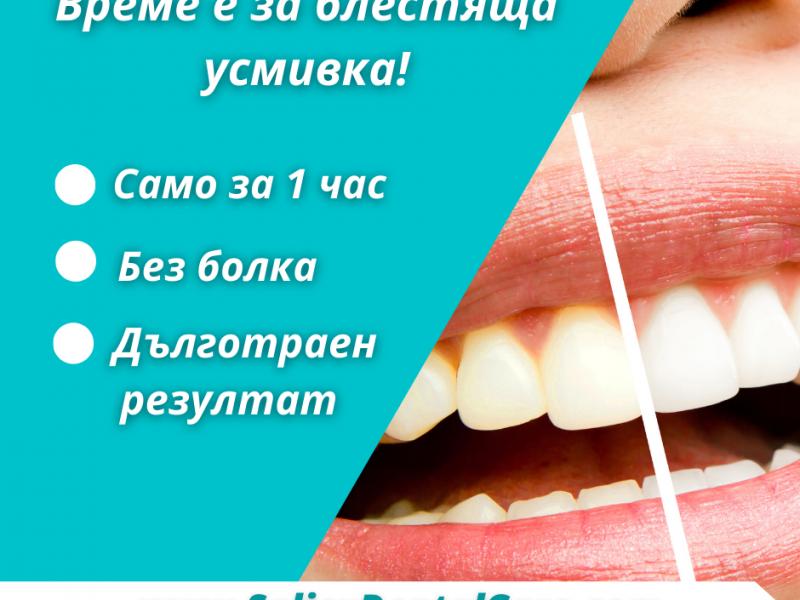 Избелване на зъби само за 1 час
