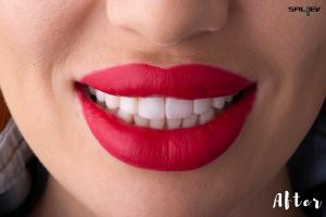 Бондинг Saliev dental care